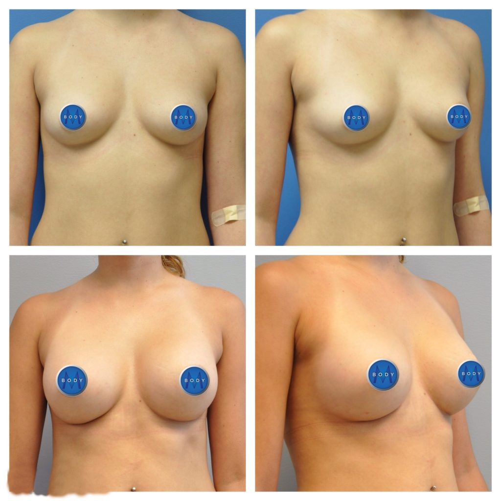 breat-aug-1024x1024 Breast Augmentation | Northern Virginia