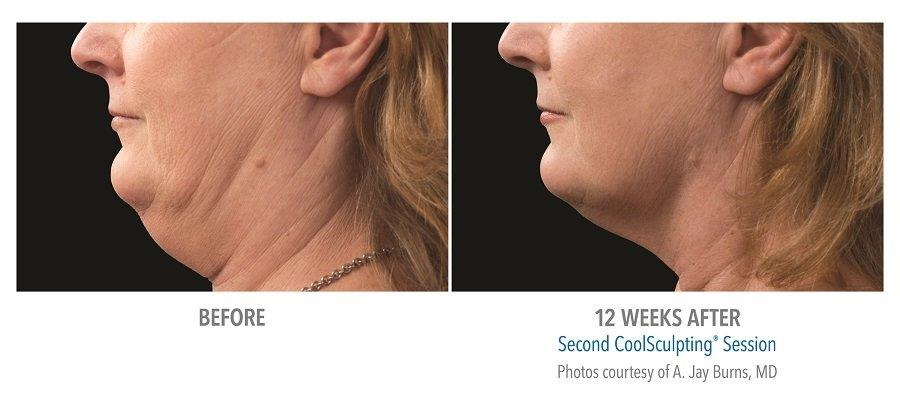 Image of: Coolsculptingforchinfatreductionbeforeafterphoto Coolmini Get Fit Jillian Michaels Neck Fat Treatment Mbody