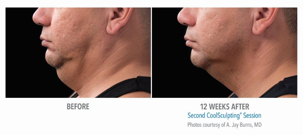 Coolsculpting-for-chin-fat-reduction-before-after-photos CoolMini Coolsculpting Neck Fat Treatment | Northern Virginia