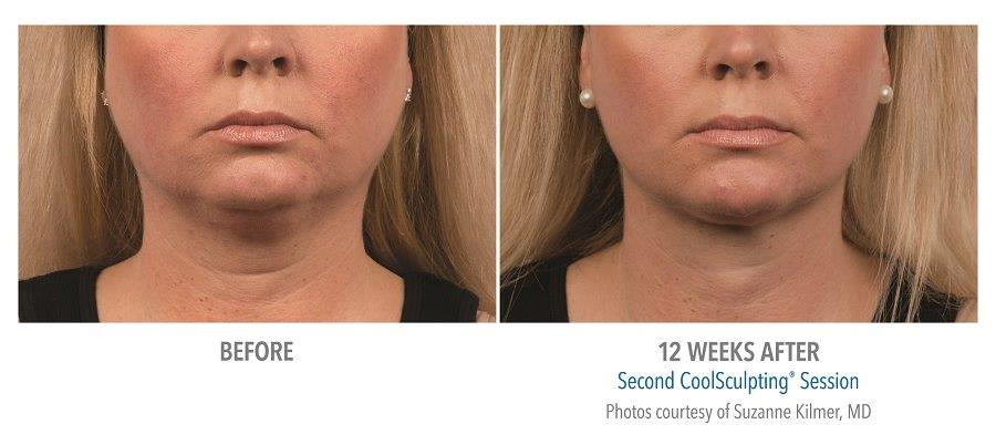 Coolsculpting-for-chin-fat-reduction-before-after-picture CoolMini Coolsculpting Neck Fat Treatment | Northern Virginia