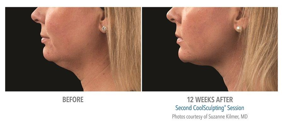 Coolsculpting-for-chin-fat-reduction-before-after-pictures CoolMini Coolsculpting Neck Fat Treatment | Northern Virginia