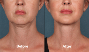 KybellaPatientPR3BeforeAfterFrontView-300x178 CoolMini and Micro Liposuction: Alternatives to Kybella Chin Reduction | Northern Virginia