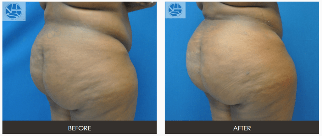 Capture-1024x435 What happens during Fat Transfer Buttock Augmentation Surgery? | Northern Virginia