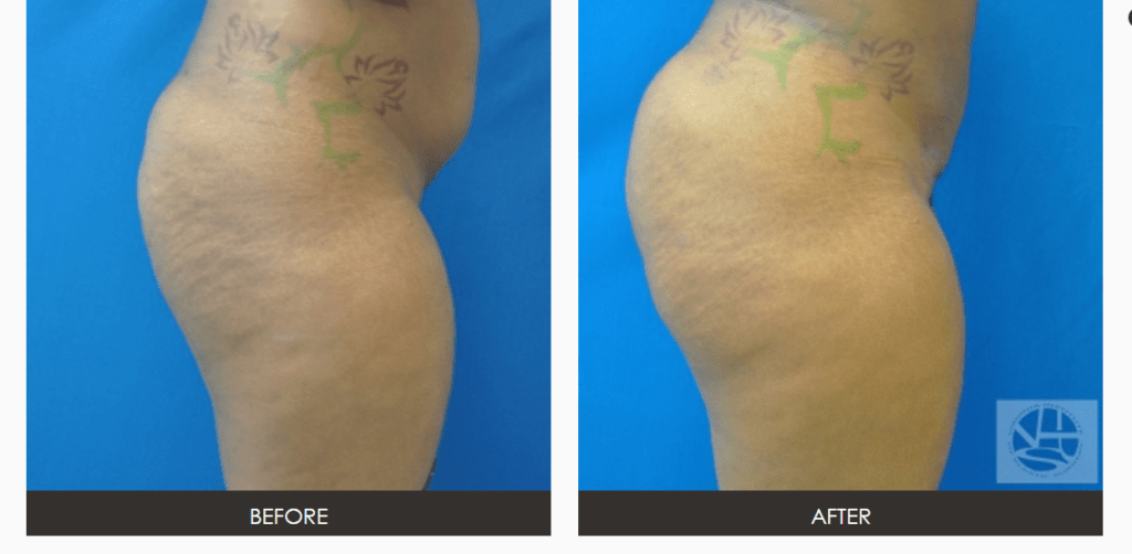 Capture1-1024x502 Fat Transfer Buttock Augmentation Risks and Safety Information | Northern Virginia