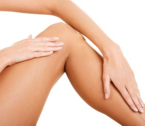 Patient-treated-for-varicose-veins-and-spider-veins-300x260 Kybella®-Off Label Uses | Northern Virginia