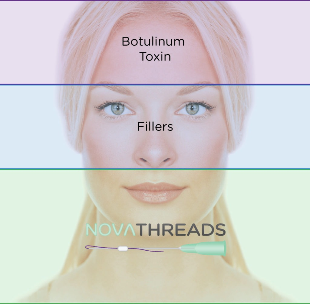 novathreads-jaw-neck-1024x1004 NovaThreads, Novalift (Novalyft) Instant Facelift | Northern Virginia
