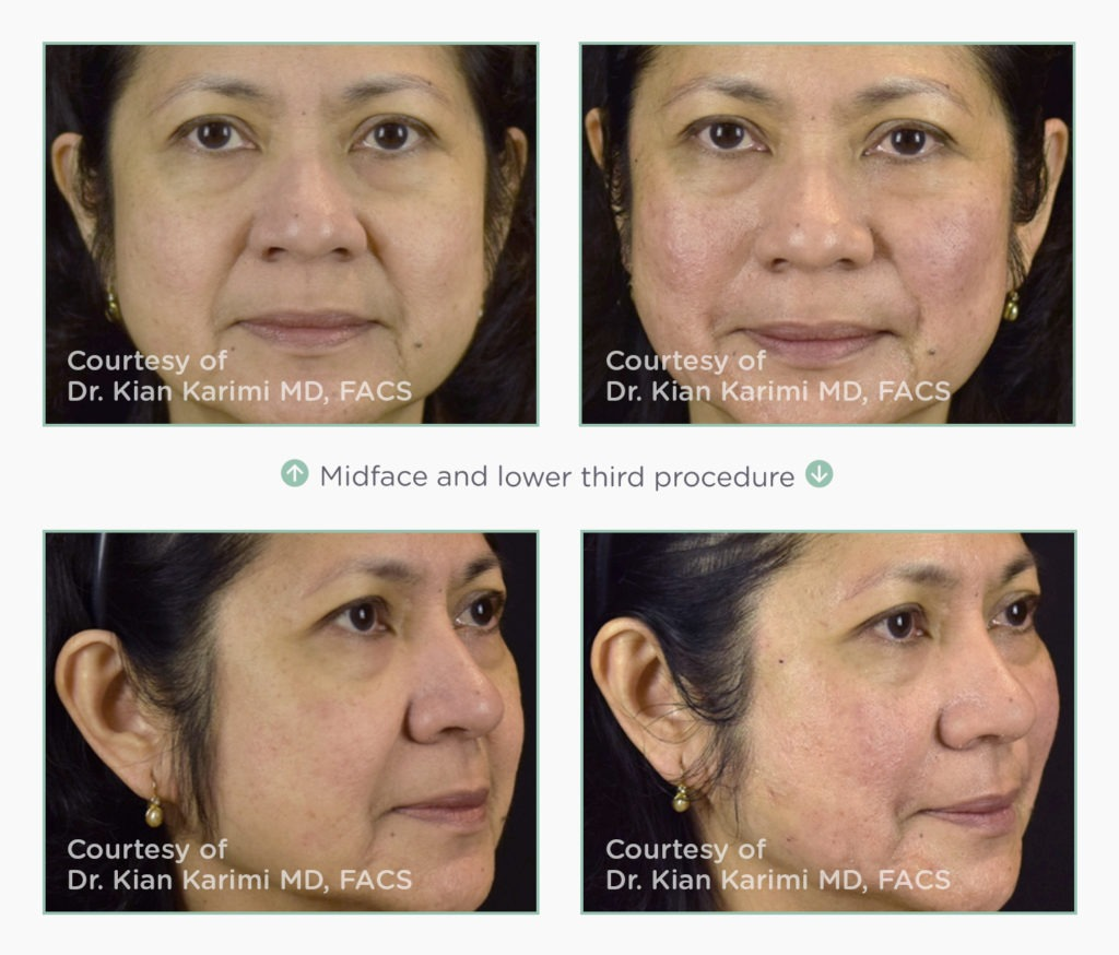 novathreads-midface-lower-face-1024x874 NovaThreads Non-Invasive Facelift Before and After Photos | Northern Virginia