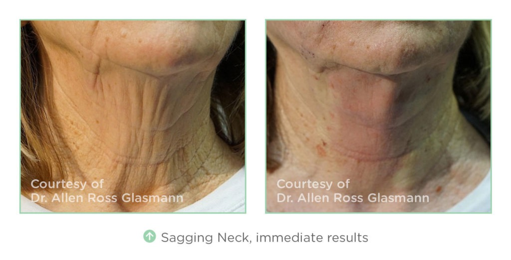 nt-before-after-sagging-neck-1024x522 NovaThreads Non-Invasive Facelift Before and After Photos | Northern Virginia