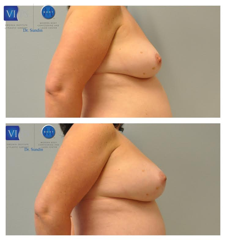 unnamed Breast Augmentation through Fat Grafting | Northern Virginia
