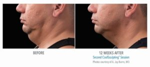 Coolsculpting-for-chin-fat-reduction-before-after-photos-300x134 How to Reduce a Double Chin? | Northern Virginia