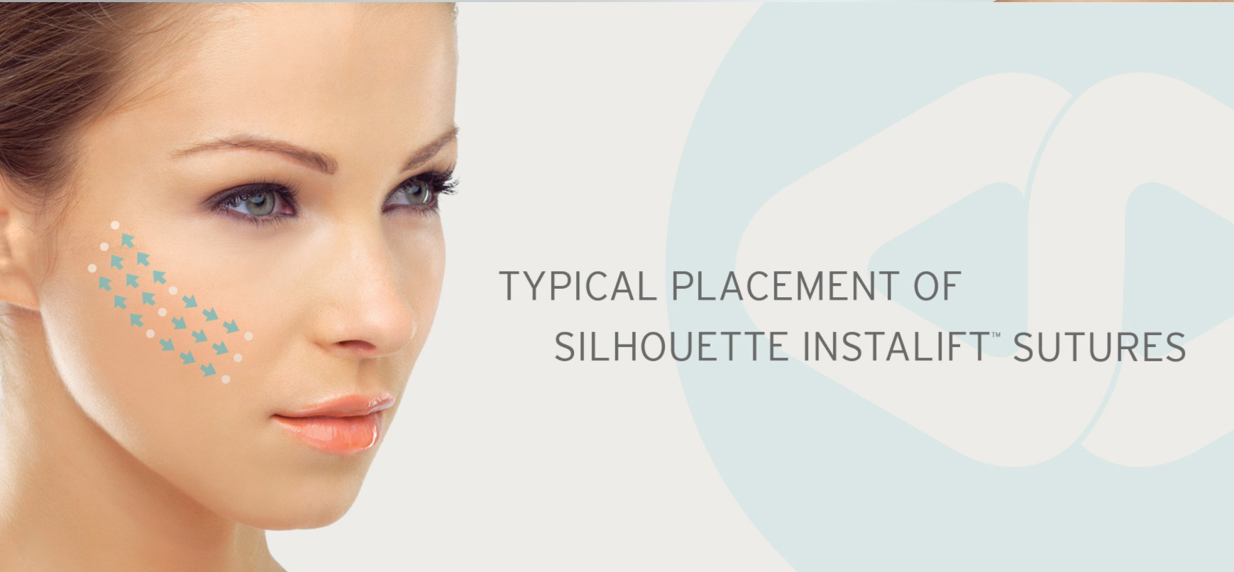 NON-SURGICAL-FACELIFT-SILHOUETTE-INSTALIFT Non-Surgical Facelift | Northern Virginia