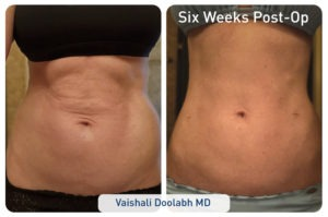renuvion_before-after_patient1-abdominal_set1-front_72dpi-300x199 J-Plasma Renuvion For Body | Northern Virginia