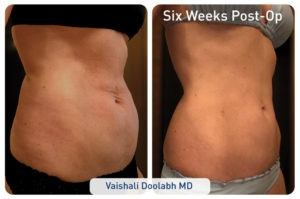 renuvion_before-after_patient1-abdominal_set2-side_72dpi-300x199 J-Plasma Renuvion For Body | Northern Virginia