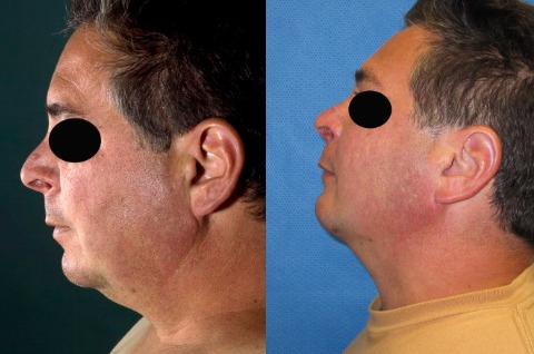 Neck-Lipo-Before-And-After-Photos Neck Lipo Before And After Photos | Northern Virginia