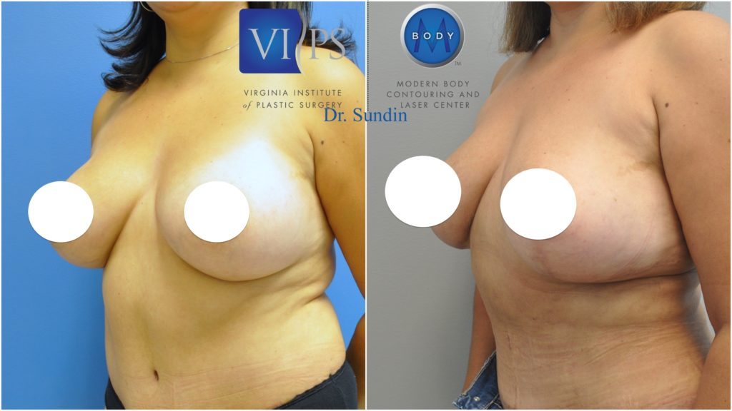 implant-removal-and-lift-vg2-1024x576 Breast Revision and Reconstruction | Northern Virginia
