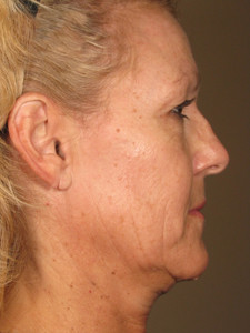 1434484983_558080f7b38f8_resized Ultherapy Skin Tightening Before and After Photos | Northern Virginia