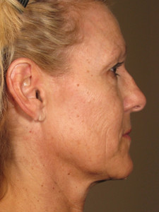 1434484984_558080f8c9d58_resized Ultherapy Skin Tightening Before and After Photos | Northern Virginia